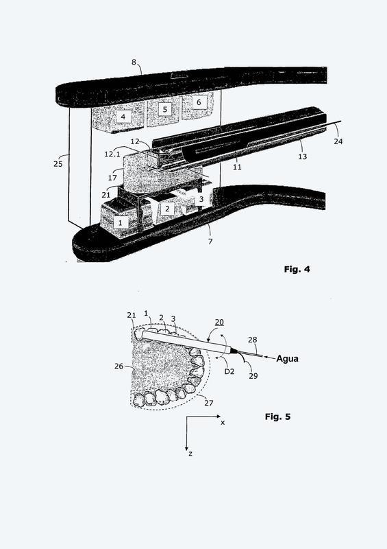 Sensor ultrasónico dental con soporte y método de adquisición de datos con dicho sensor ultrasónico.