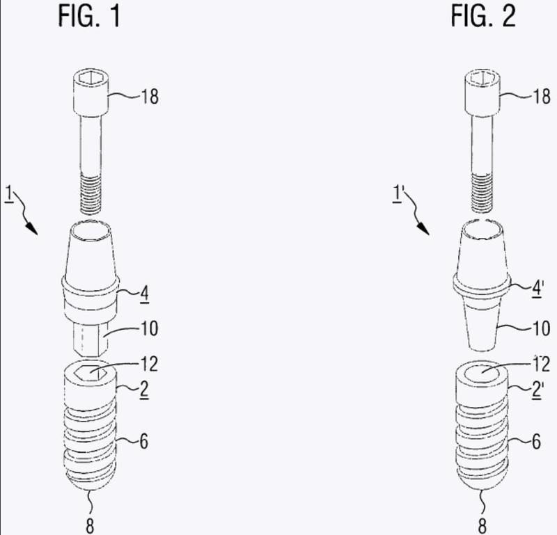 Sistema de implante dental y procedimiento para la producción de un sistema de implante dental.