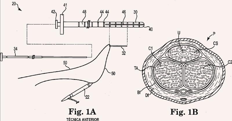 Una herramienta con una acanaladura útil para implantar un cilindro de prótesis de pene.