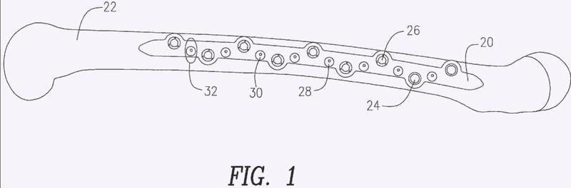 Bloqueo de cable para placa de fracturas por medio de leva.