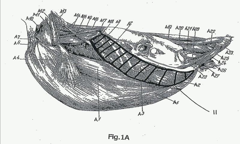 Procedimiento y dispositivo para el procesamiento de una parte de carcasa de aves sacrificadas.