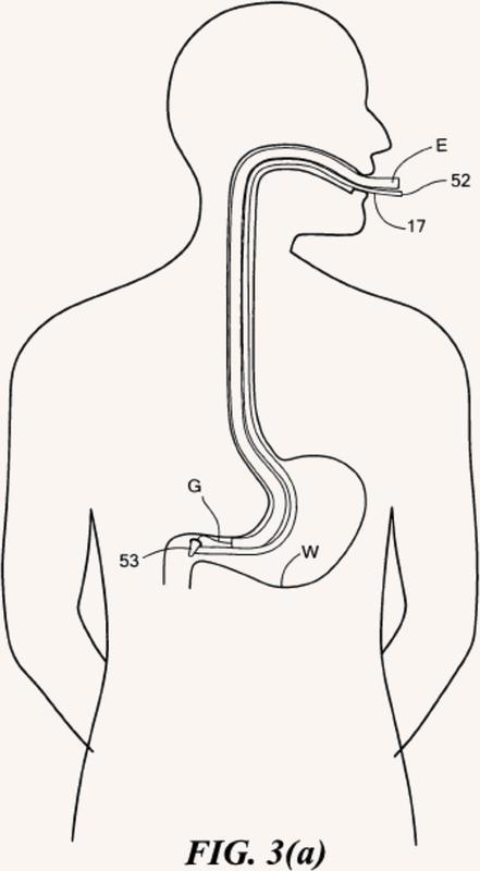 Equipo de cirugía endoscópica transluminal.