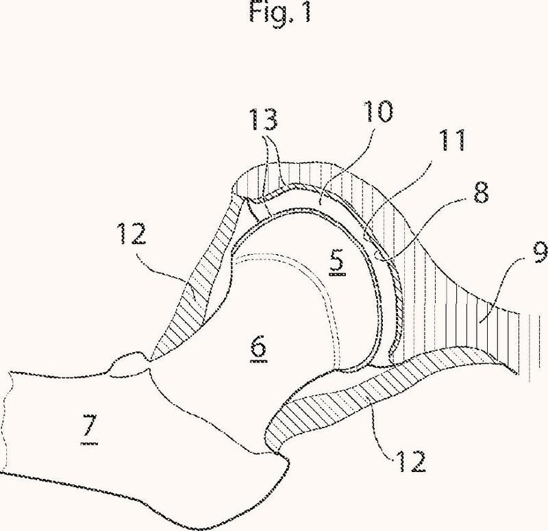 Dispositivo de articulación de la cadera.