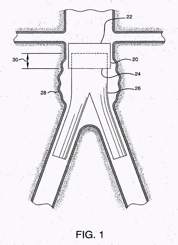 Sistemas de conducto protésico endoluminal y método de acoplamiento.