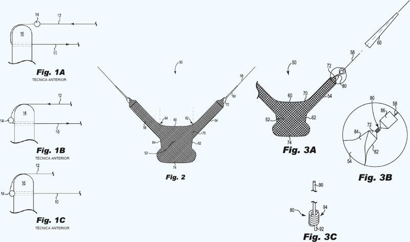 Soporte implantable con dilatador fijado a un brazo.
