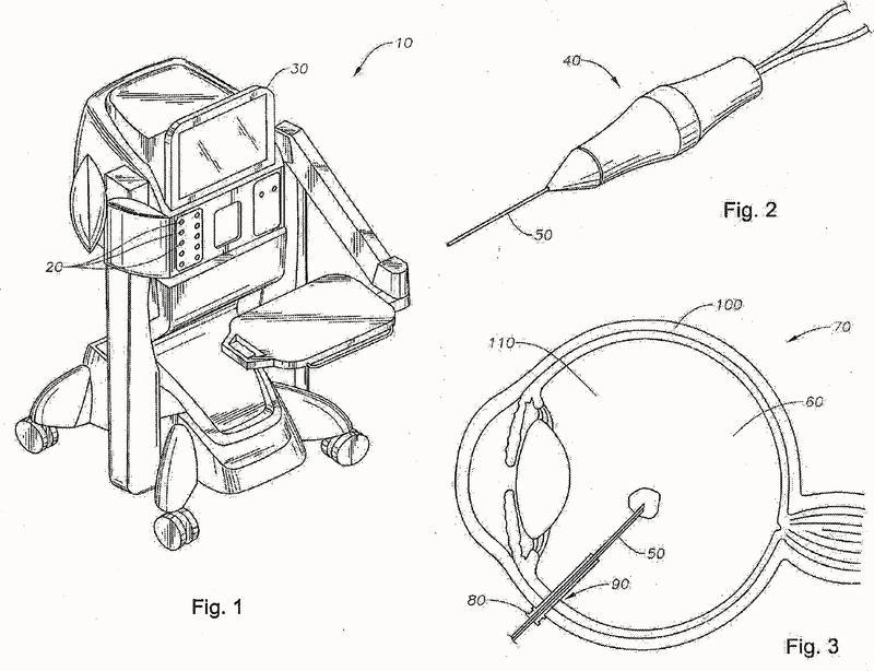 Sonda de vitrectomía con tamaño de orificio de dispositivo de corte ajustable.