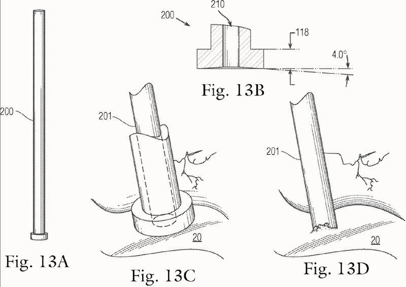 Un implante no biodegradable multicomponente.