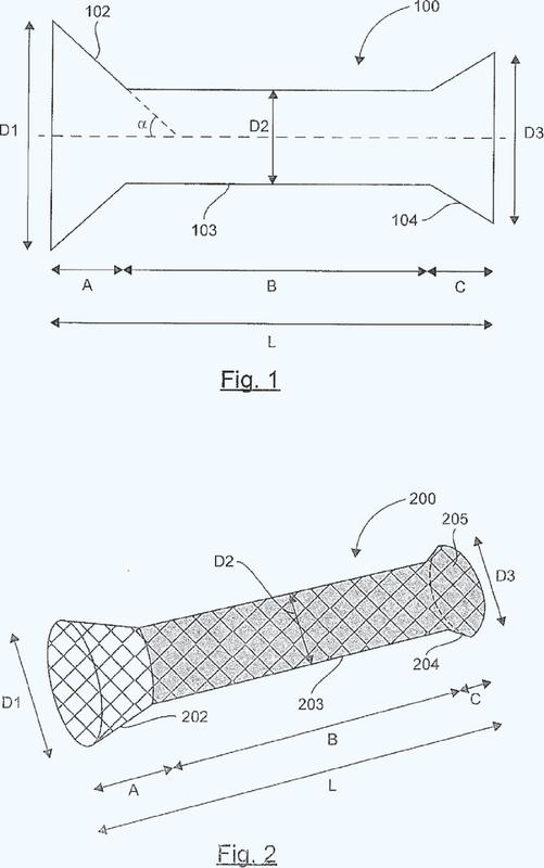 Prótesis expansora destinada a ser implantada en el tubo digestivo de un paciente.