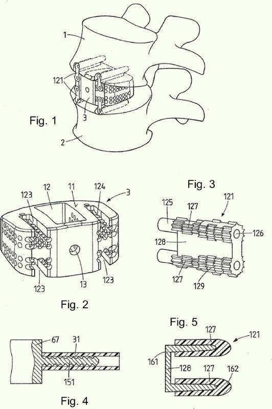 Dispositivo de estabilización de la columna vertebral.