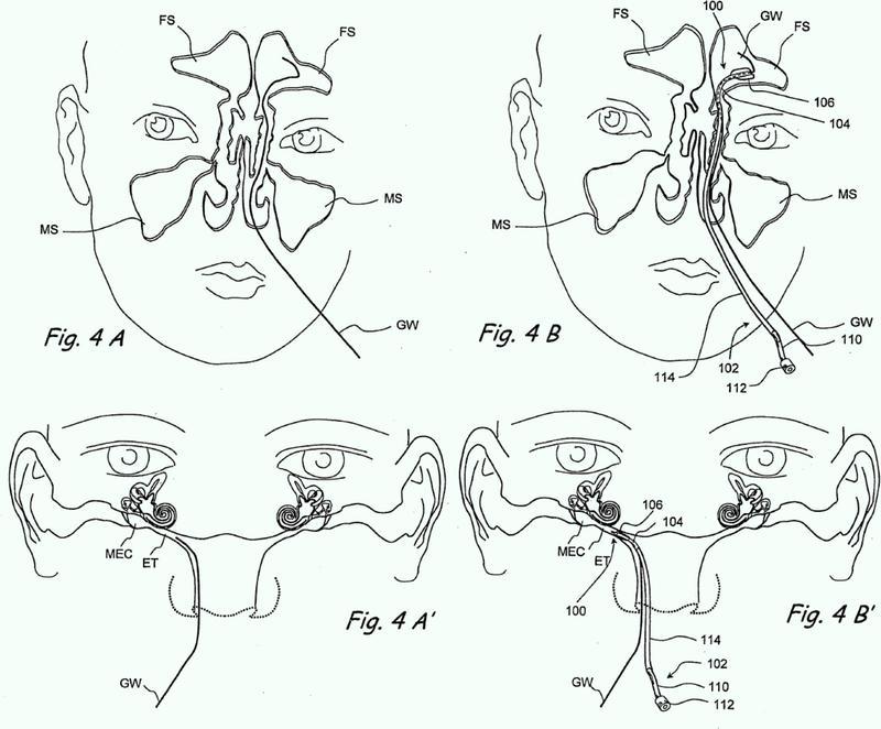 Dispositivos para la administración de sustancias terapéuticas para el tratamiento de la sinusitis.