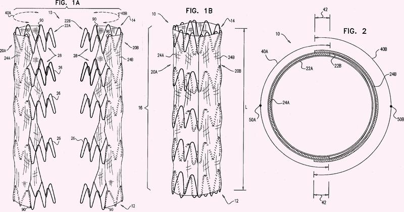 Sistema endovascular con endoprótesis que solapan circunferencialmente.