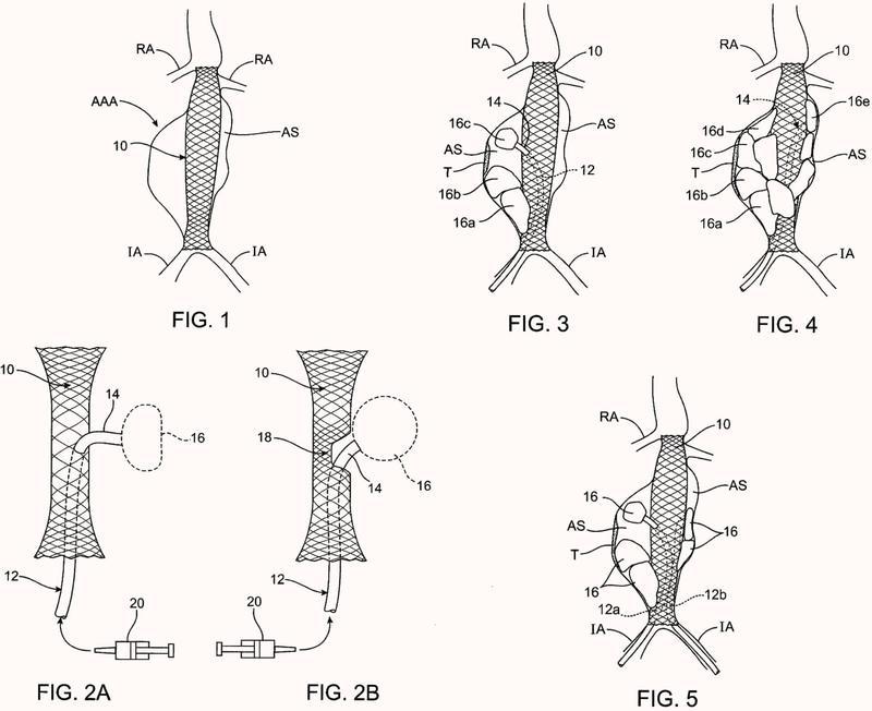Sistemas para el tratamiento de aneurisma usando estructuras de relleno.