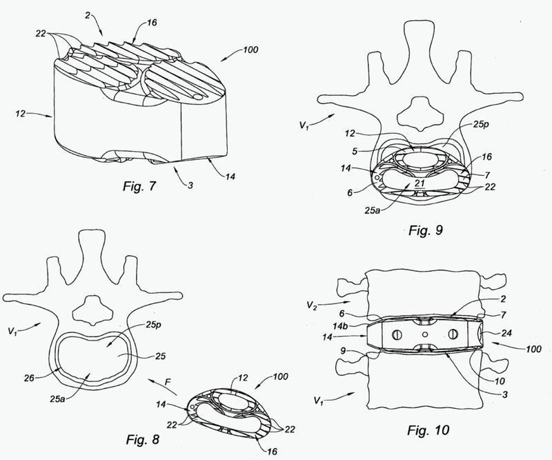 Implante intersomático.