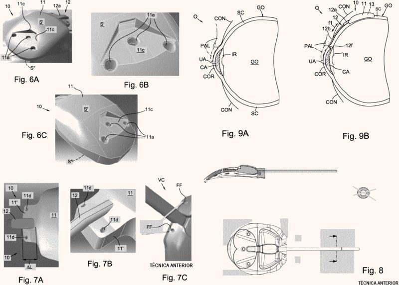 Válvula de drenaje implantable en el ojo de un paciente para el tratamiento de glaucoma.