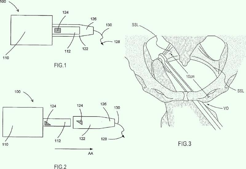 Implante y manguito de suministro para implantes de suelo pélvico.