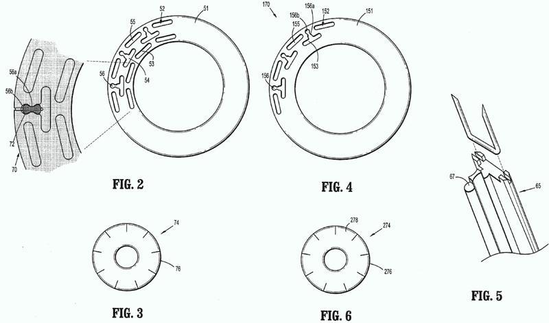 Fijación de contrafuerte para una grapadora circular.