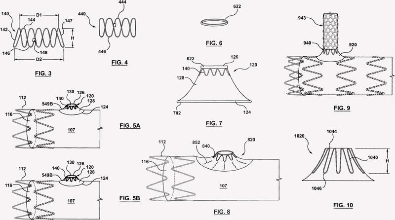 El acoplamiento externo móvil para conexión de rama vascular.