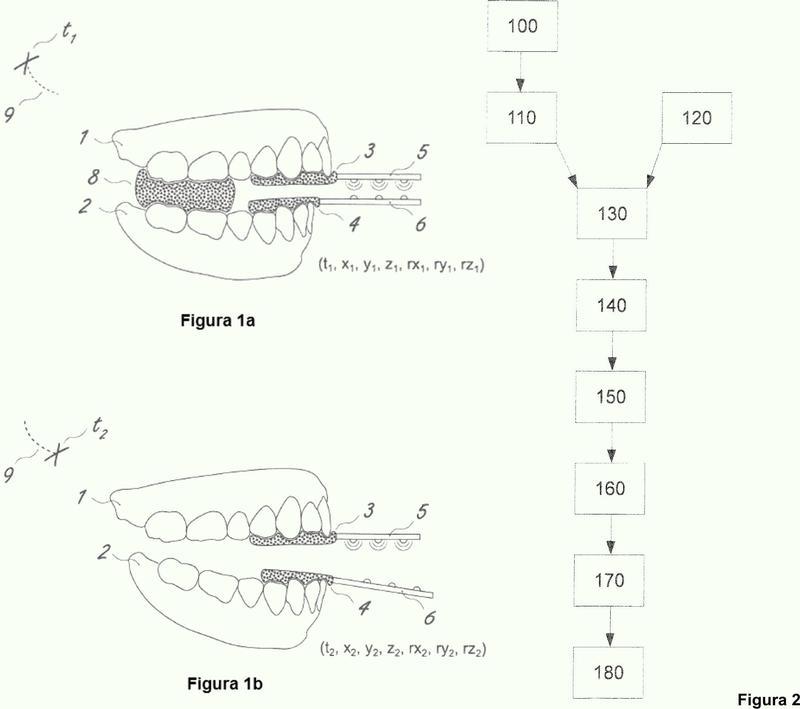 Procedimiento para la creación de una imagen virtual de la mandíbula.