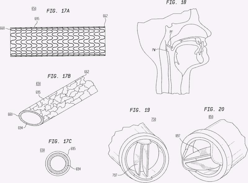 Dispositivos para formar una vía respiratoria auxiliar para tratar apnea obstructiva del sueño.