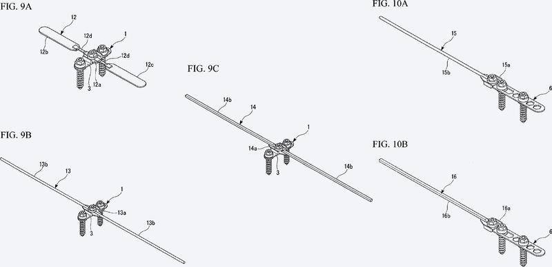 Estructura de implante ortodóncico.
