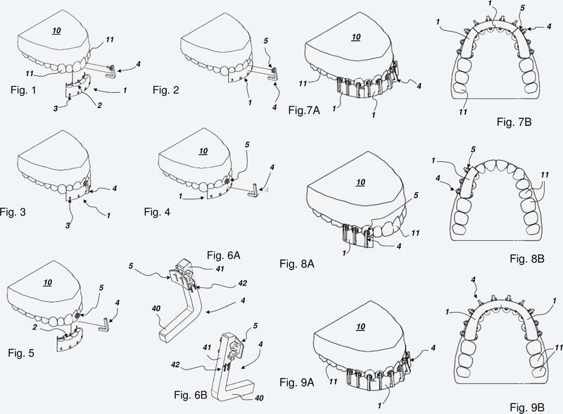 Guía para el posicionamiento de enganches ortodónticos.