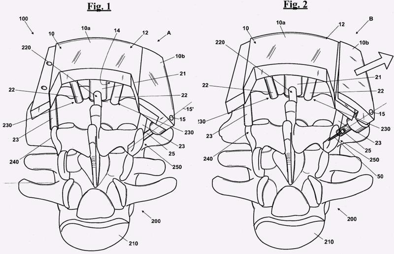 Máscara de perforación para perforar orificios para operaciones quirúrgicas en el campo ortopédico.