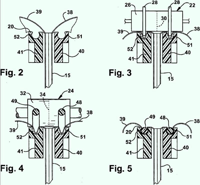 Sistema y método de empaquetado.
