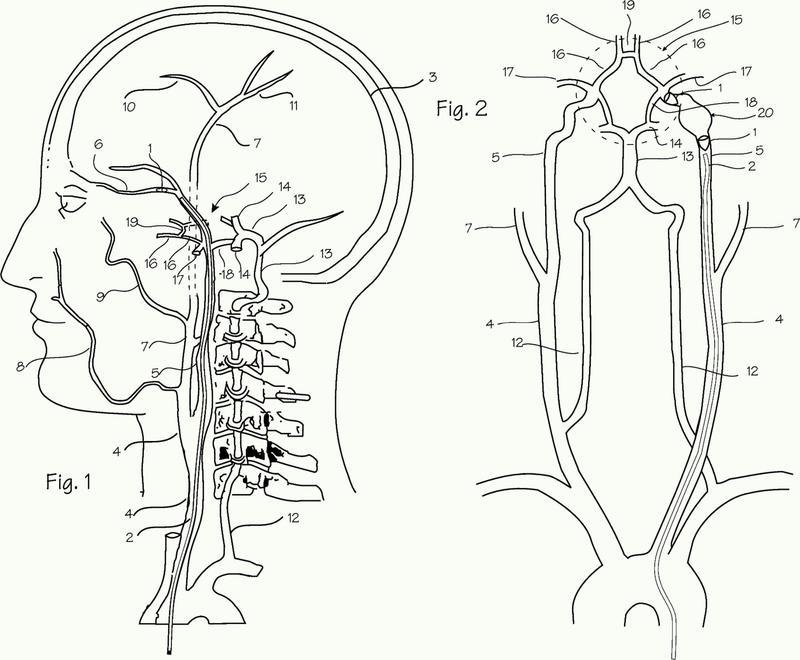 Implante embólico y método de uso.
