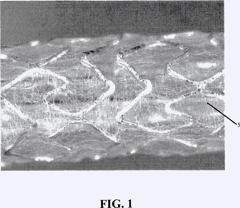 Endoprótesis híbrida helicoidal.
