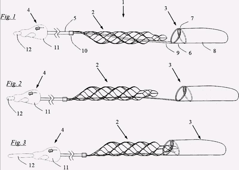 Sistema de captura y extirpación de coágulos.