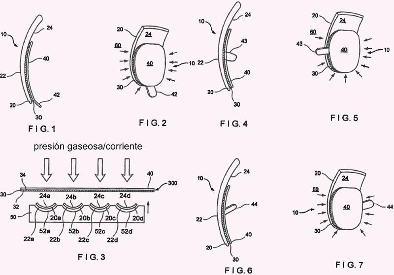 Disposición artificial de uña o punta de uña y método para su realización.