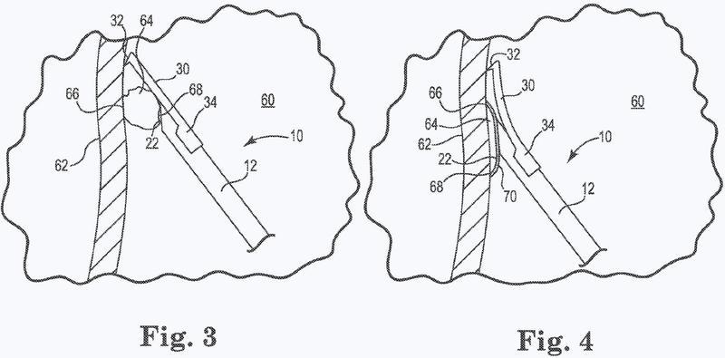 Dispositivo de estabilización y reparación tisular.