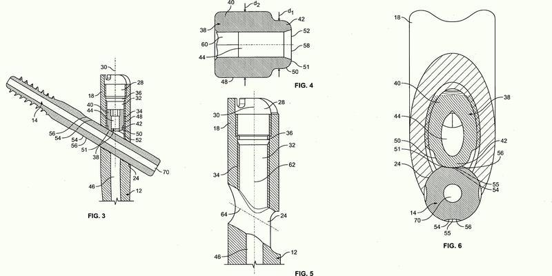 Sistema de implante para fijación de hueso.