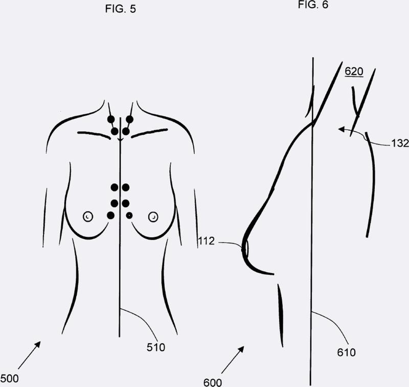 Reconocimiento anatómico y análisis dimensional para asistir en la cirugía de mama.