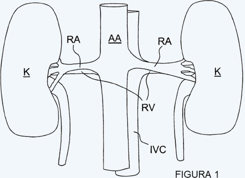 Aparato para neuromodulación renal multivaso.