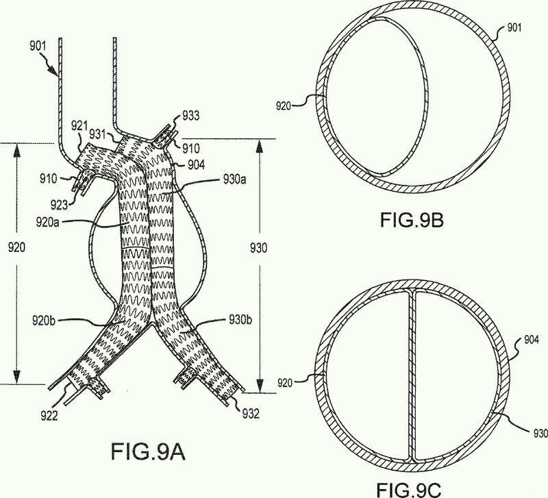 Dispositivos para aproximar el perfil en sección transversal de la vasculatura con ramificaciones.