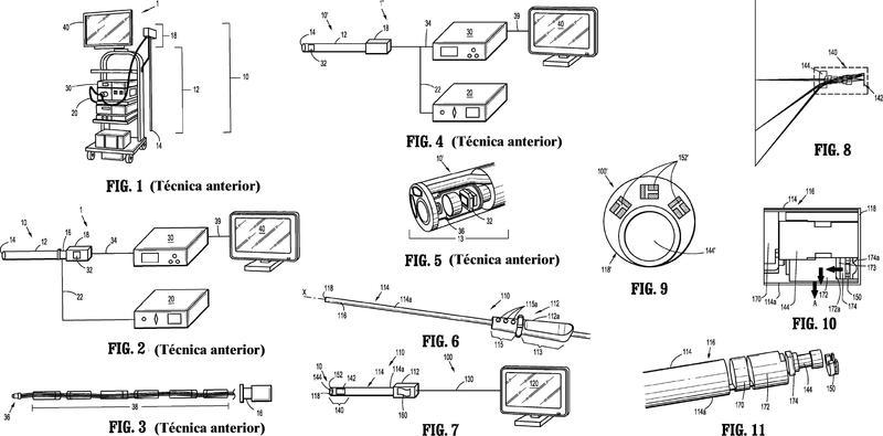 Sistema de endoscopio.