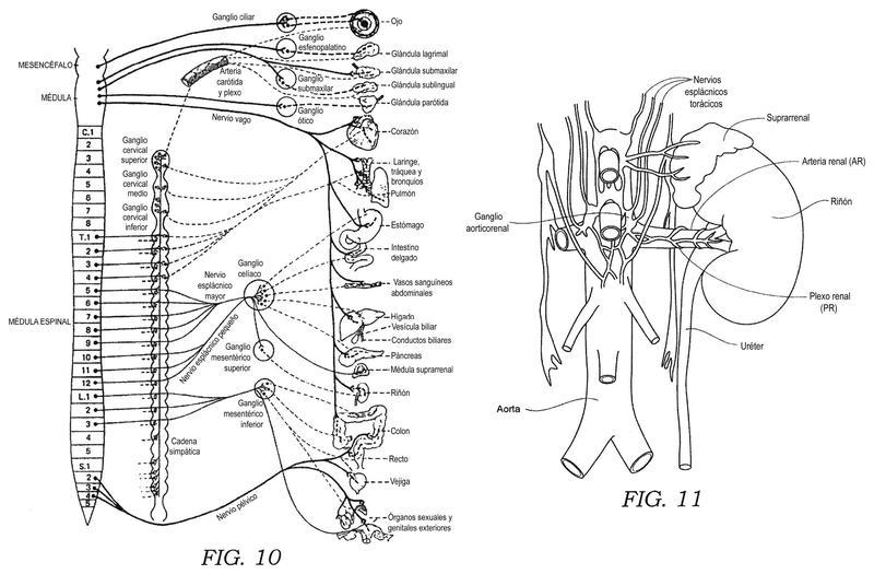 Dispositivos endovasculares de monitorización nerviosa y sistemas asociados.