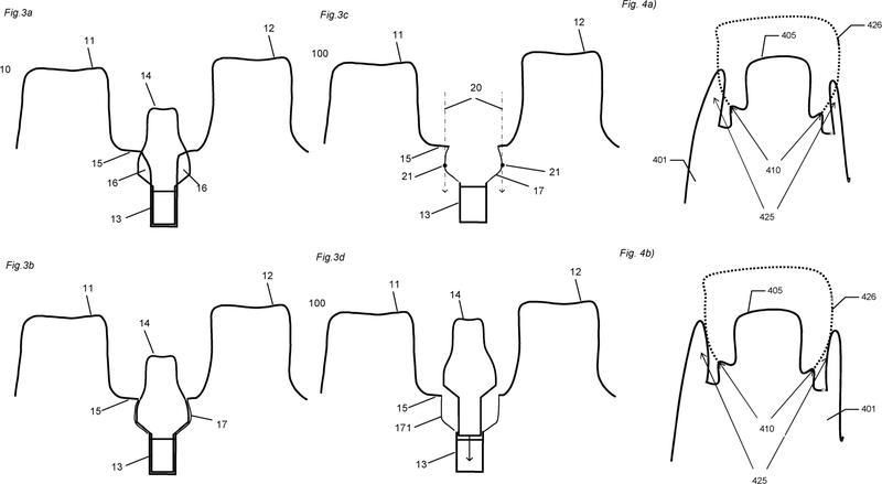 Método de modificación de la parte gingival de un modelo virtual de una dentadura.