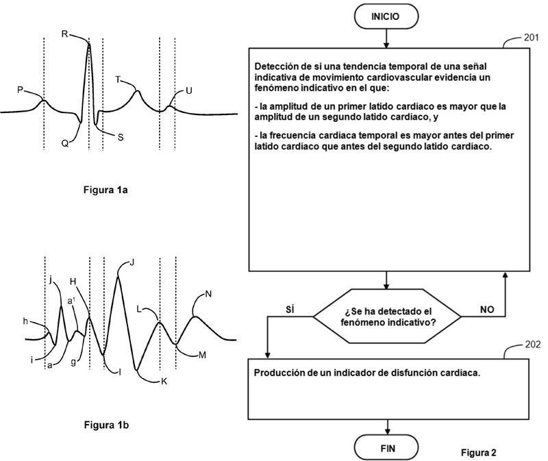 Procedimiento y aparato para determinar información indicativa de disfunciones cardíacas.