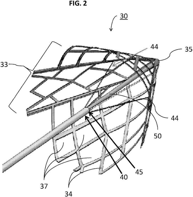 Ilustración 1 de la Galería de ilustraciones de Un dispositivo de captura de coágulos con múltiples cestas