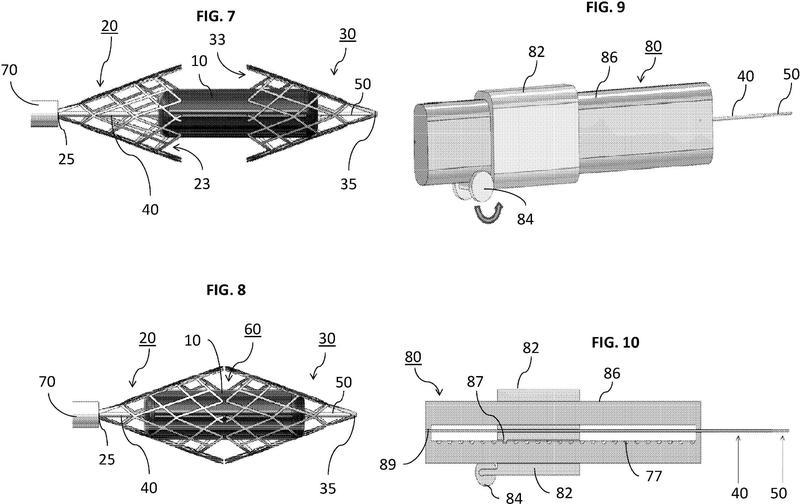Ilustración 3 de la Galería de ilustraciones de Un dispositivo de captura de coágulos con múltiples cestas