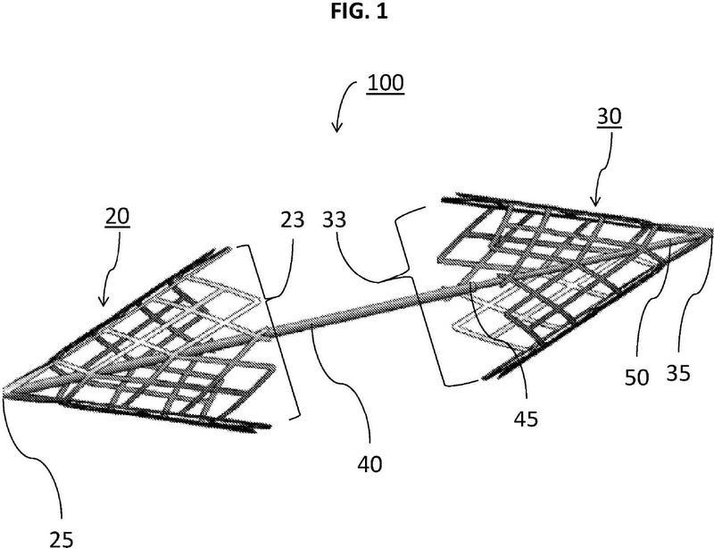 Ilustración 4 de la Galería de ilustraciones de Un dispositivo de captura de coágulos con múltiples cestas