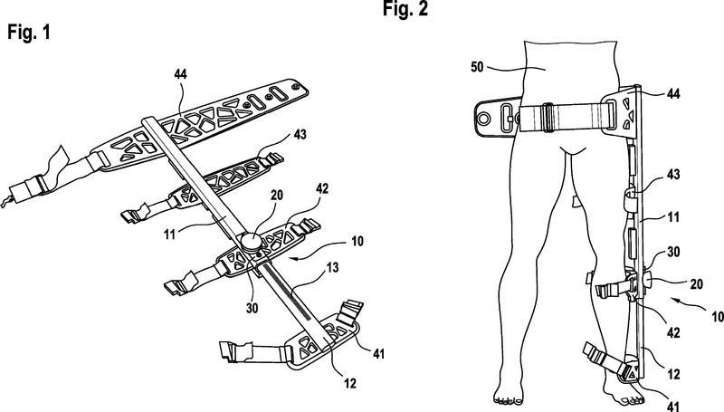 Dispositivo de estiramiento para la cura de fracturas óseas.