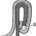 Ilustración 2 de CONTROLADOR DE DOBLE JUNTA.