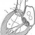 Ilustración 4 de Válvula cardiaca sustituible.
