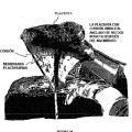 Ilustración 2 de Placenta post-parto de mamíferos, su uso y células troncales placentarias de la misma.