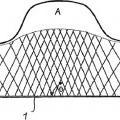 Ilustración 6 de Implante para influir en el flujo sanguíneo.