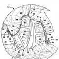 Ilustración 2 de Implante de articulación facetaria.