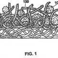 Ilustración 1 de Artículo absorbente con núcleo absorbente ranurado.